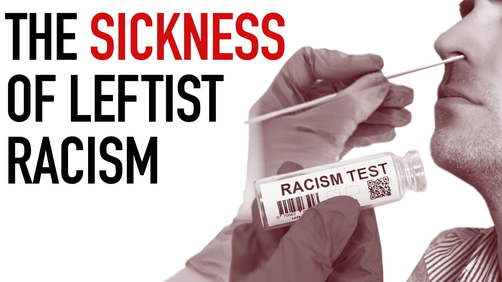 Ep. 1027 - The Sickness of Leftist Racism
